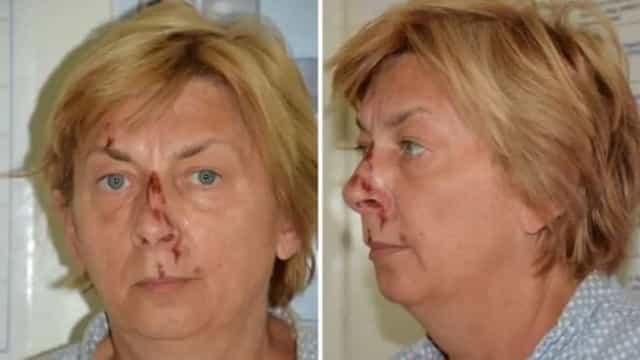 Mulher totalmente sem memória e machucada é encontrada na Croácia